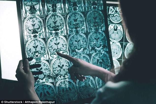 Scientists discover sticking brain cells together with a glue-like molecule could boost memory and even protect against Alzheimer's