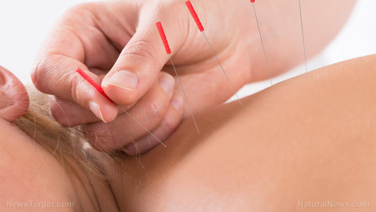 Stroke patients suffering from insomnia can find relief with acupuncture