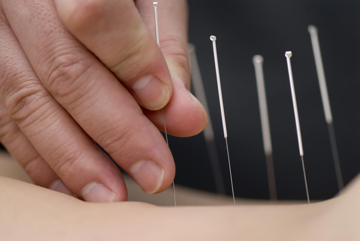 Acupuncture improves cognitive function of Alzheimer's patients