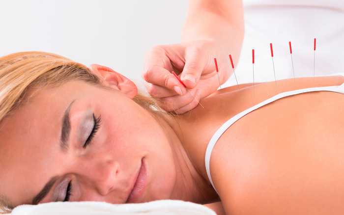 Acupuncture: Better than meds for pain relief