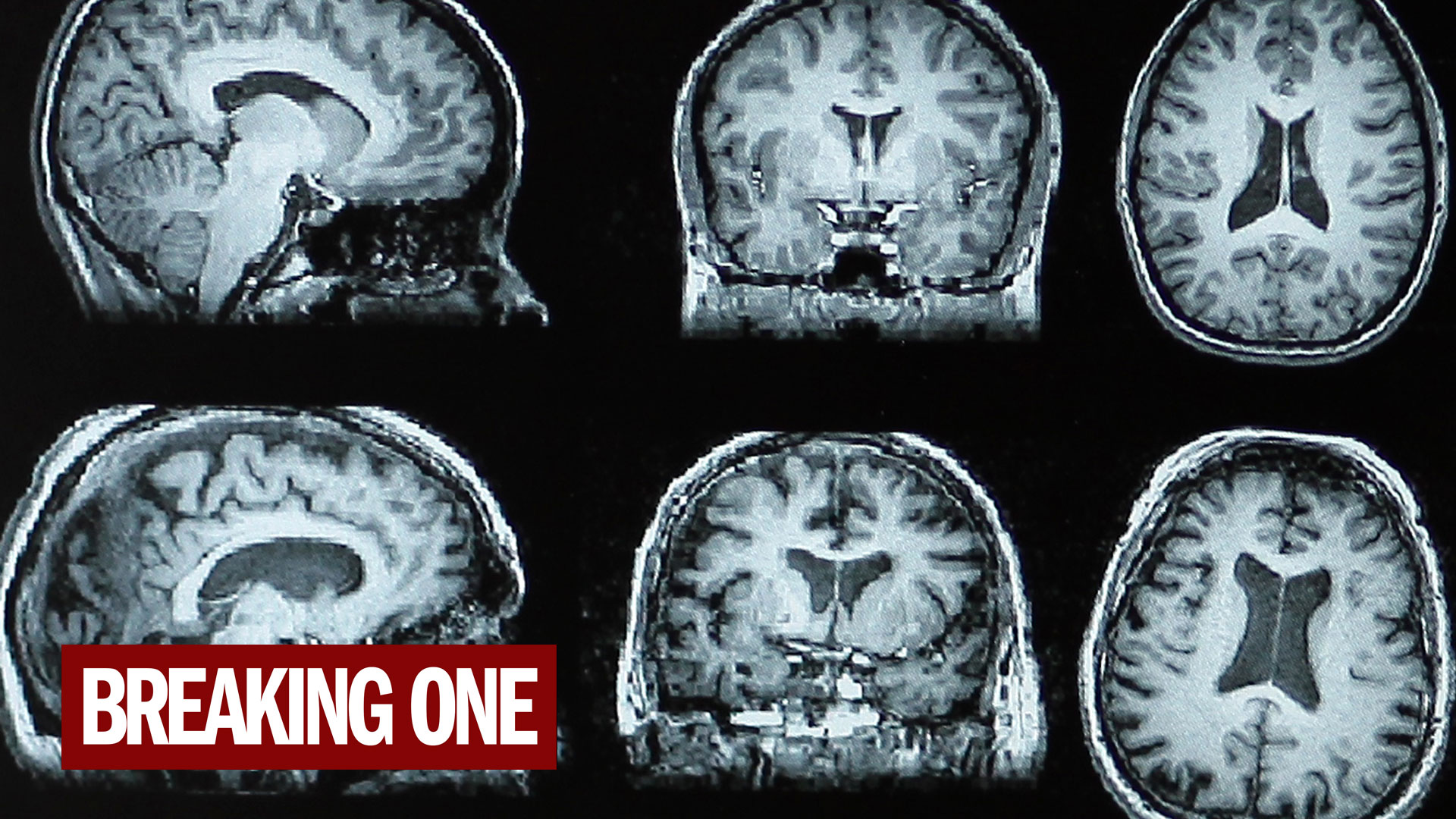 Scientists peek into opioid users' brains as they try to quit
