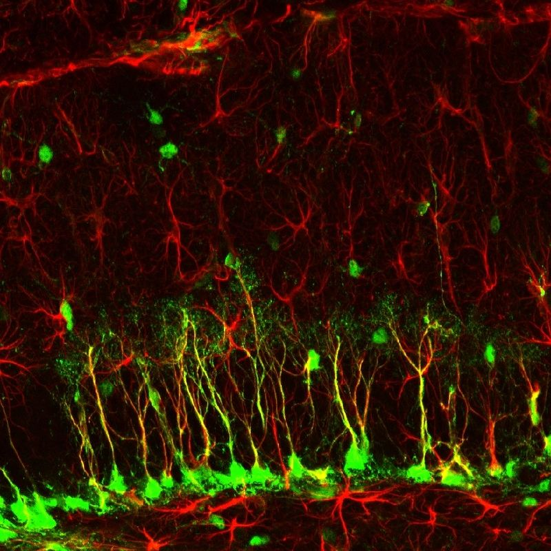 What Is Neurogenesis? Role in Memory, Mood & Stress