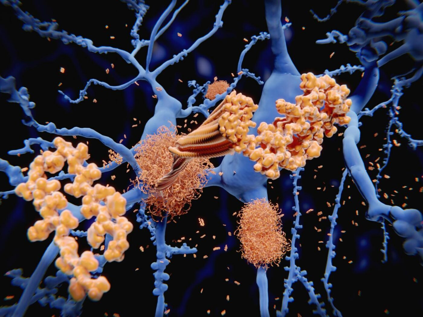 Study Identifies Cytokines That Predict Cognitive Trajectories in Older Adults