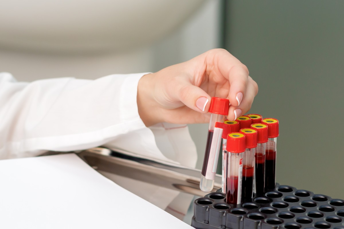 Blood biomarker detects whether depression is due to neurodegeneration
